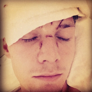 Barron Hilton Allegedly Beaten By Lindsay Lohan Pal Ray LeMoine