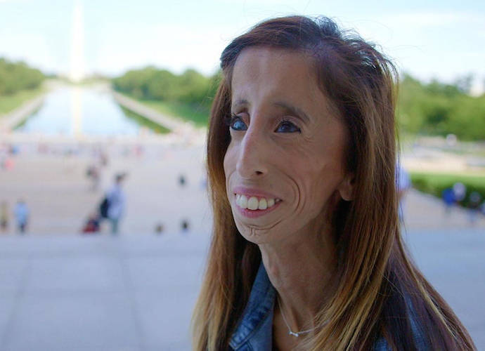 'A Brave Heart: The Lizzie Velasquez Story' Takes Home Audience Award At SXSW [FULL LIST]