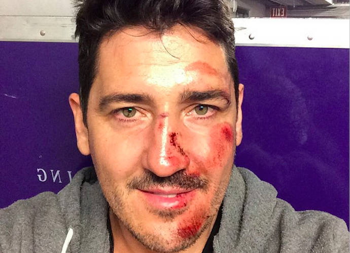 Jonathan Knight Breaks Nose In Tour Bus Accident, Misses ...