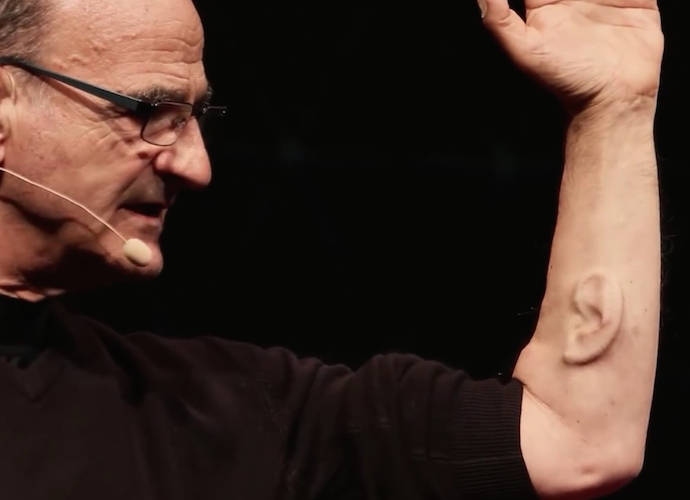 Stelarc, Performance Artist, Has Third Ear Implanted On His Arm