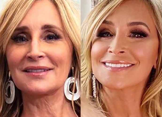 Sonja Morgan, 'The Real Housewives Of New York' Star, Reveals $75,000 Facelift
