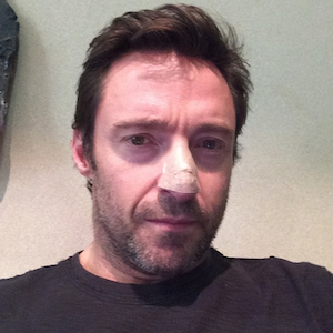 Hugh Jackman Has Skin Cancer Scare, Shares Pic